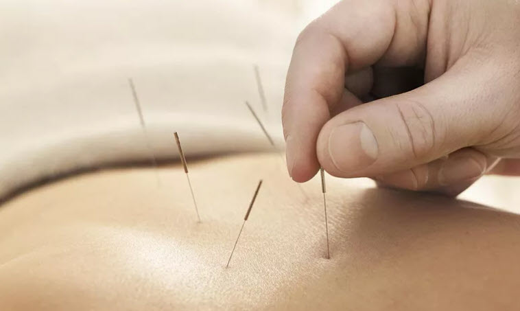 Chiropractors Applying Natural Remedies For Sciatic Pain