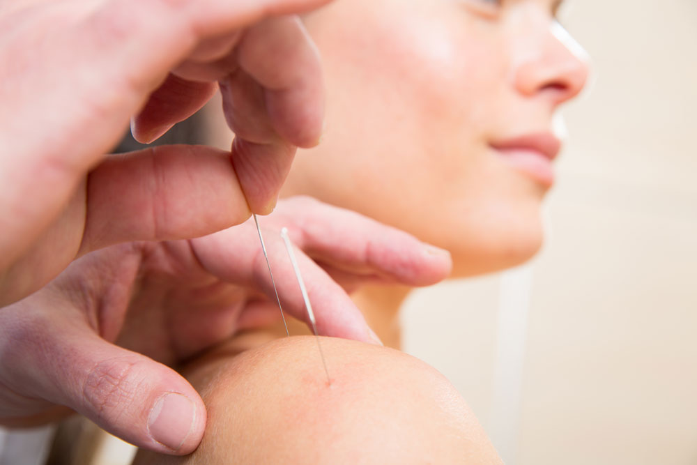 Chiropractors Applying Acupuncture Treatment in Chicago