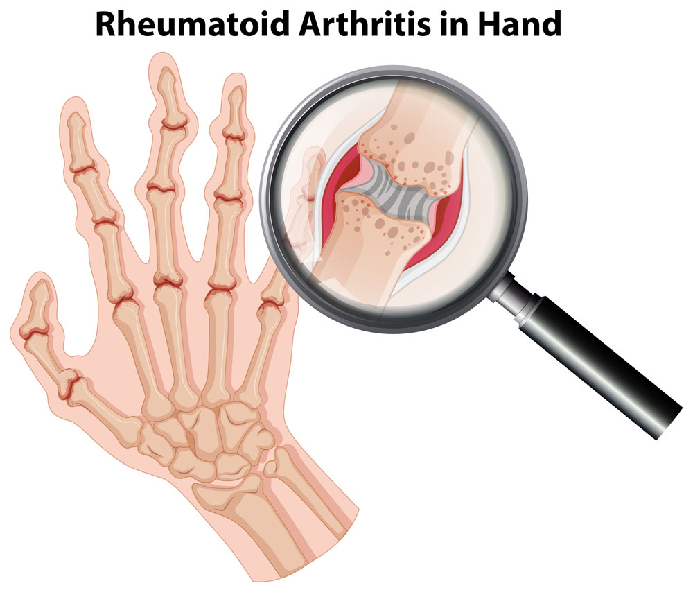 Chiropractors for Relief From Arthritis Pain In Chicago