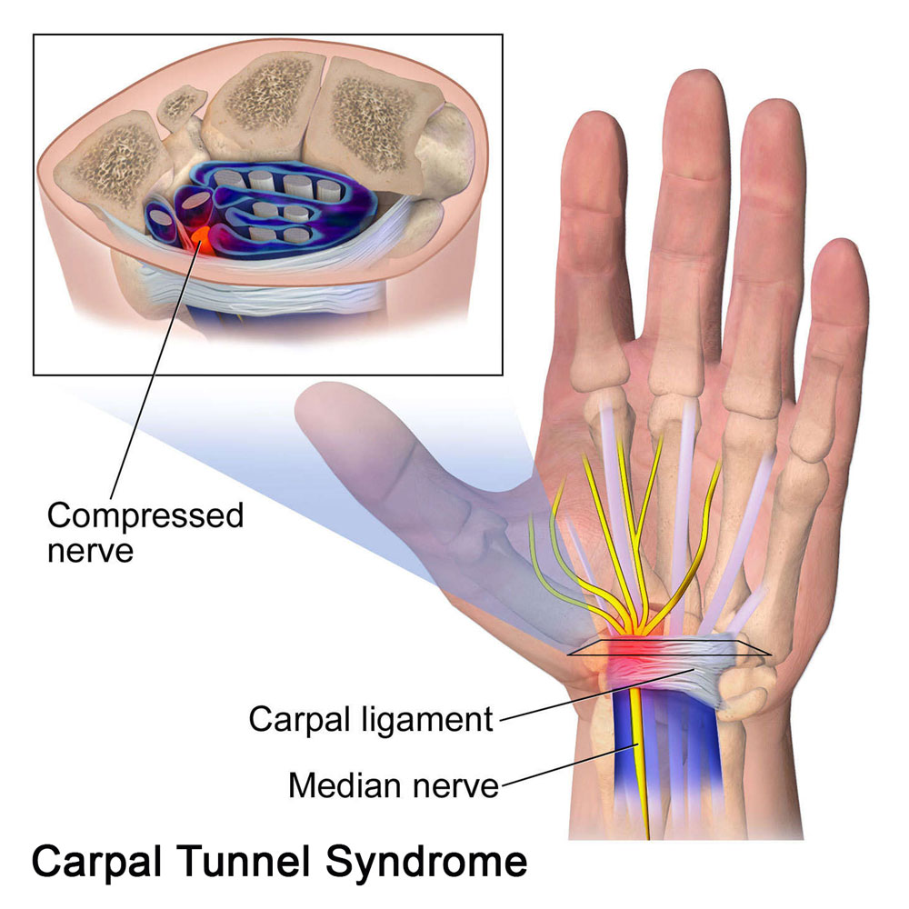 Best Chiropractors for Carpal Tunnel Syndrome Treatment in Chicago