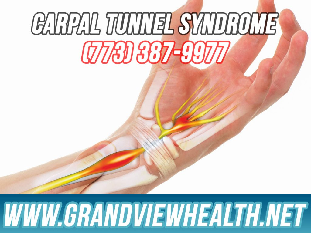 Carpal Tunnel Syndrome in Chicago Ilinois
