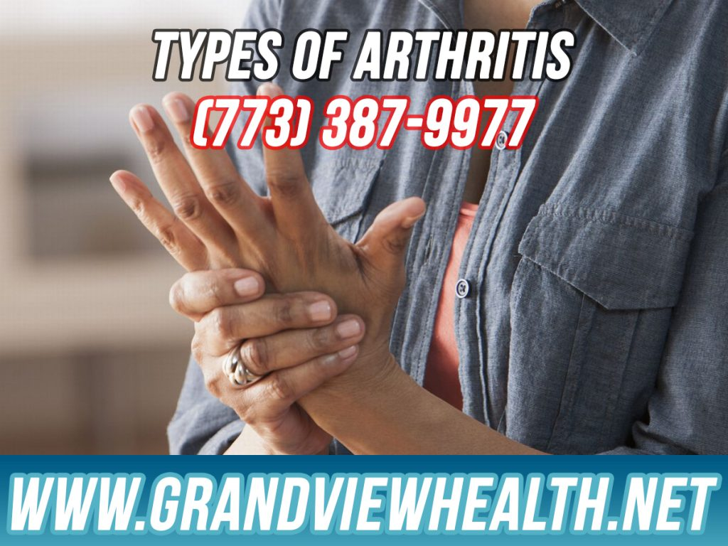 Different Types of Arthritis in Chicago Illinois